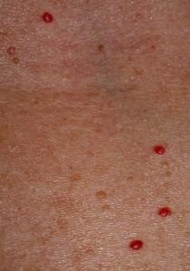 An example of Cherry Angiomas (Campbell de Morgan spots).