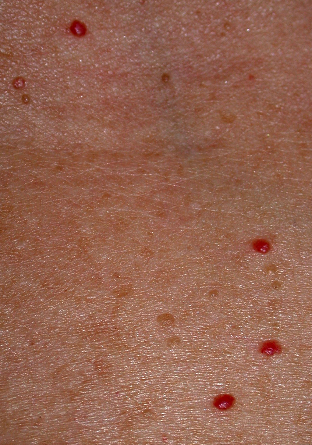 An example of Cherry Angiomas (Campbell de Morgan spots).